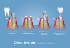 Menselijke tanden en Tandimplant stock foto