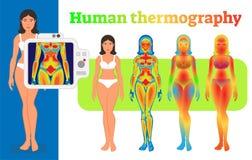 Menselijke thermografieillustratie Royalty-vrije Stock Foto's
