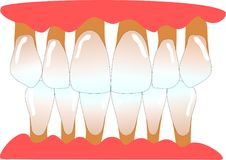 Menselijke voorafgaande tanden met periodontitis Stock Foto's