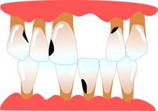 Menselijke voorafgaande tanden met ruimteruimte Stock Afbeelding