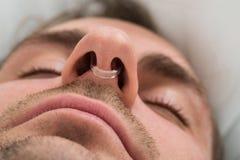 Mensengezicht met het apparaat van de neusklem royalty-vrije stock foto