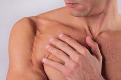 Mensenmens met litteken op zijn handschouder De Verminderingsconcept van het laserlitteken Stock Foto