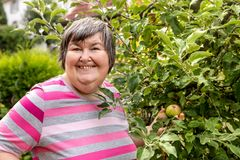 Free Mental Disabled Woman Is Showing A Apple On A Apple Tree Stock Images - 158626244