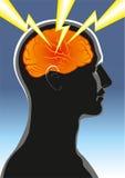 Mental hälsa. Huvudvärk Arkivbild
