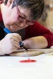 Mentalmente - donna disabile con la penna bruciante fotografia stock libera da diritti