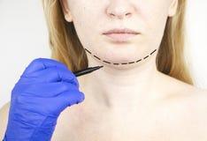 Mentoplasty: πλαστικό πηγούνι Ασθενής πριν από τη χειρουργική επέμβαση πηγουνιών και λαιμών Ο πλαστικός χειρούργος συμβουλεύει στοκ εικόνα με δικαίωμα ελεύθερης χρήσης