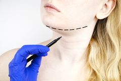 Mentoplasty: πλαστικό πηγούνι Ασθενής πριν από τη χειρουργική επέμβαση πηγουνιών και λαιμών Ο πλαστικός χειρούργος συμβουλεύει στοκ εικόνα