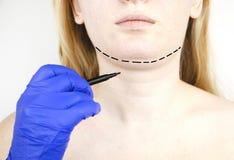 Mentoplasty: πλαστικό πηγούνι Ασθενής πριν από τη χειρουργική επέμβαση πηγουνιών και λαιμών Ο πλαστικός χειρούργος συμβουλεύει στοκ φωτογραφίες