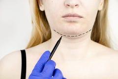 Mentoplasty : menton en plastique Patient avant chirurgie de menton et de cou Le chirurgien plasticien conseille image stock