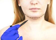 Mentoplasty : menton en plastique Patient avant chirurgie de menton et de cou Le chirurgien plasticien conseille images stock
