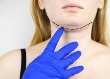 Mentoplasty : menton en plastique Patient avant chirurgie de menton et de cou Le chirurgien plasticien conseille image libre de droits