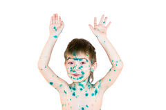 Merry sick boy on a white background Stock Images
