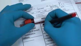 MERS-CoV, Doktor, der Krankheit im Laborfreien raum, Blutprobe im Rohr zeigend überprüft stock footage