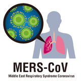 MERS-CoV(Middle East respiratory syndrome coronavirus) image illustration Stock Photo