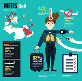 MERS-CoV Virus. Royalty Free Stock Photo