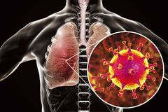 MERS virus, Meadle-East Respiratory Syndrome coronavirus. In human lungs, 3D illustration Royalty Free Stock Images
