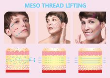 Meso thread Lift. Young female with clean fresh skin. Beautiful woman. face and neck. royalty free illustration