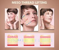 Meso thread Lift. Young female with clean fresh skin. Beautiful woman. face and neck. stock image