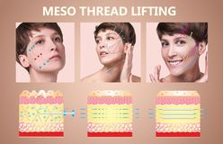 Meso thread Lift. Young female with clean fresh skin. Beautiful woman. face and neck. royalty free stock images