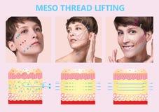 Meso trådelevator Ung kvinnlig med ren ny hud härlig kvinna Framsida och hals royaltyfri illustrationer