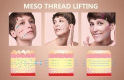 Mesofaden Aufzug Junge Frau mit sauberer frischer Haut Schöne Frau Gesicht und Hals lizenzfreie stockbilder