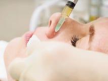 Mesoteraphy процедуре по косметологии Оживление подмолаживания, питание кожи, уменьшение морщинки Доктор делая injec microneedle стоковые фото