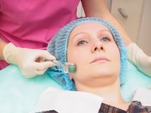 Mesoteraphy microneedle procedure. Rejuvenation, revitalization, skin nutrition, wrinkle reduction. Cosmetology mesoteraphy microneedle procedure. Rejuvenation Stock Photography