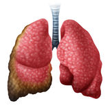 Mesothelioma Cancer Disease Concept. As human lungs with growing malignant cancer cells as a medical illness conceptual symbol for asbestos exposure in a 3D Stock Image