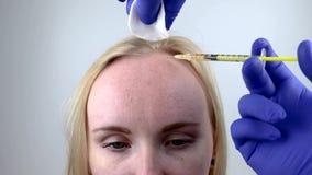 mesotherapy的头发或头发移植:美容师医生做在一名妇女的头的射入头发成长的或防止 股票视频