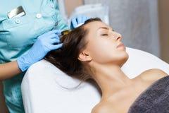 mesotherapy的针 化妆用品被注射在妇女` s头 推加强头发和他们的成长 免版税库存图片