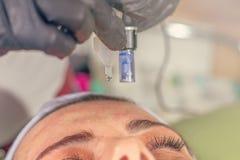 Mesotherapy behandling för visare på en kvinnaframsida arkivfoto
