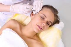 Mesotherapy-Einspritzungen im Gesicht Lizenzfreie Stockfotografie