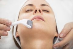 Mesotherapy face by mezoroller. Royalty Free Stock Images
