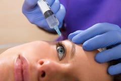 Seringa mesotherapy facial antienvelhecimento na cara da mulher imagens de stock royalty free