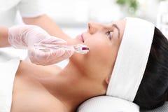 Mesotherapy microneedle, kvinnan på kosmetologen arkivbilder