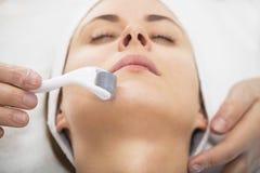 Mesotherapy stawia czoło mezoroller Obrazy Royalty Free