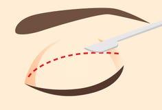 Messer auf dem Augenlid nach dem entworfenen Schnittgrundsatz lizenzfreie abbildung