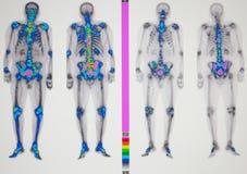 Metástasis severa del cáncer de próstata imágenes de archivo libres de regalías
