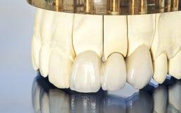 Metaal vrije ceramische tandkronen Stock Afbeelding