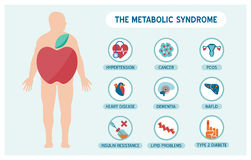 The metabolic sundrome. The metabolic syndrome infographics with disease medical icons, fat male body and apple shape Royalty Free Stock Images