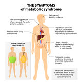 Metabolic syndrome. Signs and symptoms. Apple and pear body shapes.  is also known as  X, cardio, syndrome X, insulin resistance syndrome or Reaven's syndrome Royalty Free Stock Image