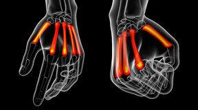 Metacarpal bone Royalty Free Stock Image