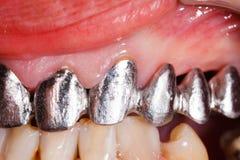 Metal Basis Dental Bridge Royalty Free Stock Image