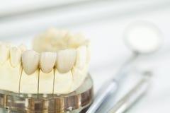 Metal bezpłatne ceramiczne stomatologiczne korony Fotografia Royalty Free