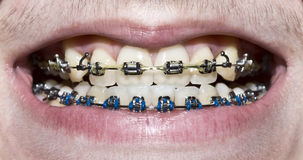 Metal braces Stock Photos