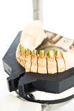 Metal dental mold Royalty Free Stock Image