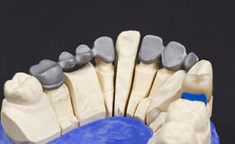 metal framework for a  dental bridge Stock Image