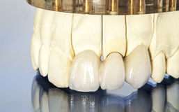 Metal free ceramic dental crowns Stock Image