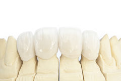 Metal free ceramic dental crowns Stock Photo