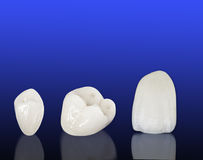 Metal free ceramic dental crowns Royalty Free Stock Images